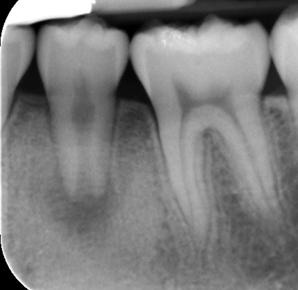 A periapical xray of necrotic tooth #3.5 with a blunderbuss apex