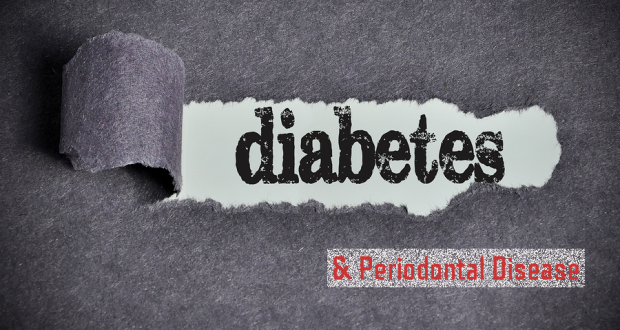 Diabetes and perio disease Featured Image